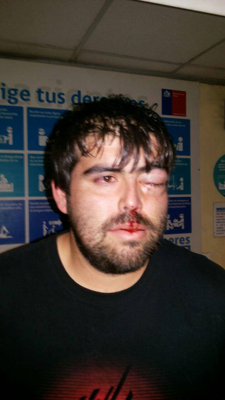 [Video] Brutal golpiza sufre taxista tras ser atacado por conductores de línea establecida en Talca