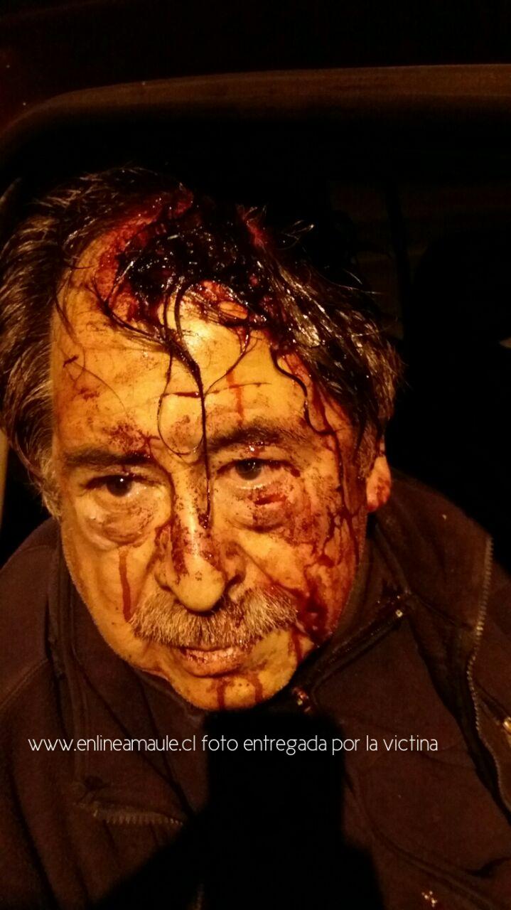 Exclusivo: Violento asalto sufre poblador tras recibir varias puñaladas, aunque logró sobrevivir
