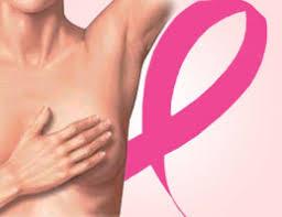 Garantías del Auge en cáncer de mama