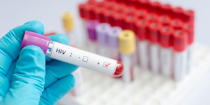 Aumento casos de VIH en el país