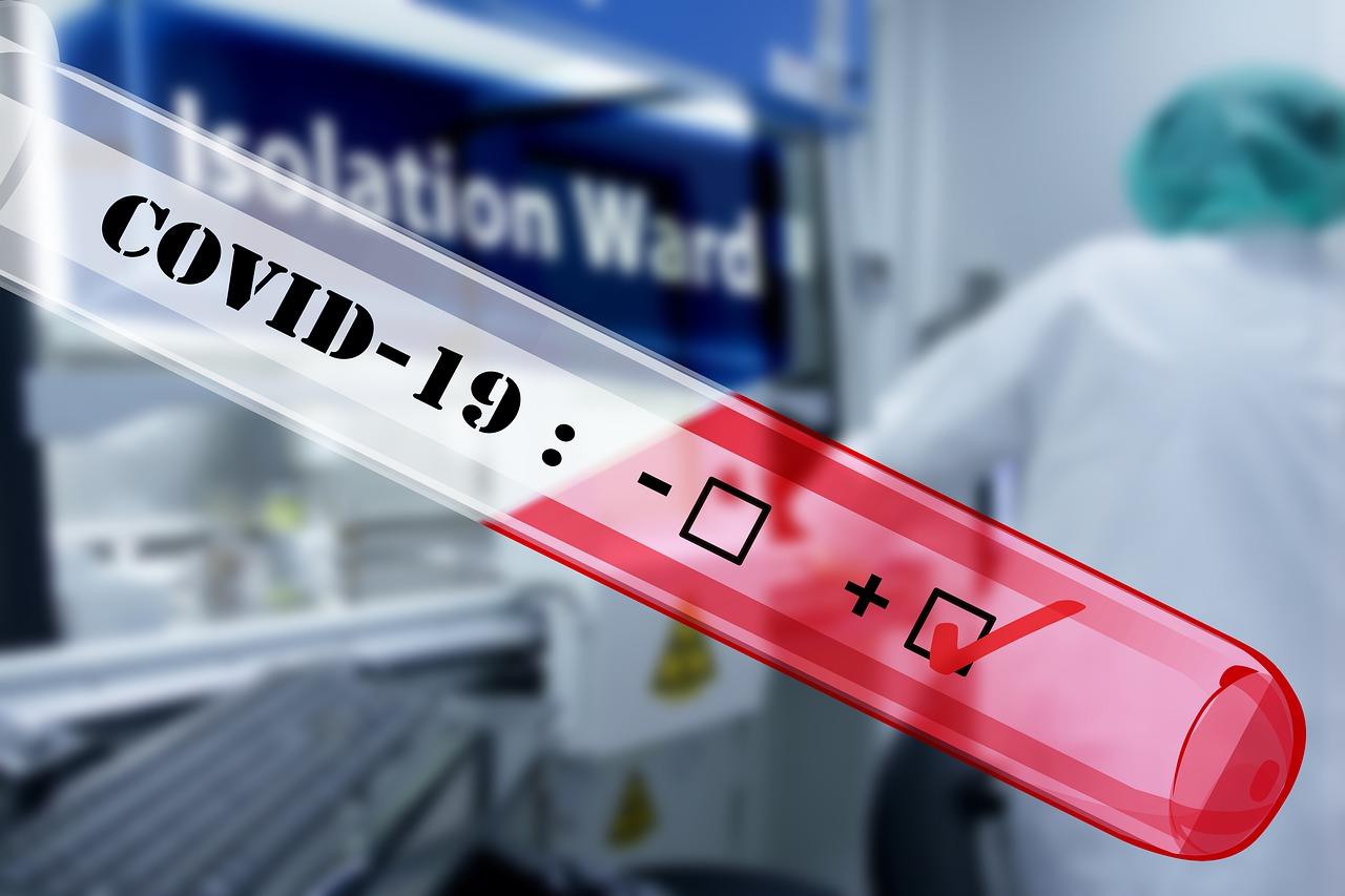 Chile ingresó a fase 4 por Coronavirus