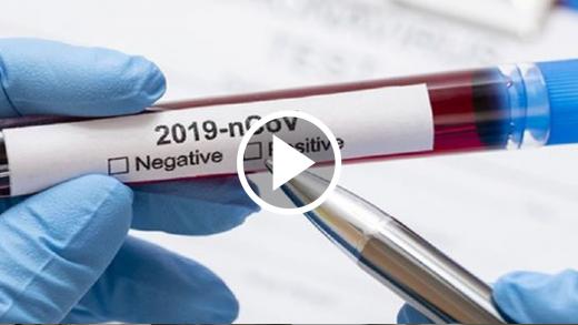 ¿Cómo se desarrolla la inmunidad frente al COVID-19? Experto en salud nos explicó el proceso